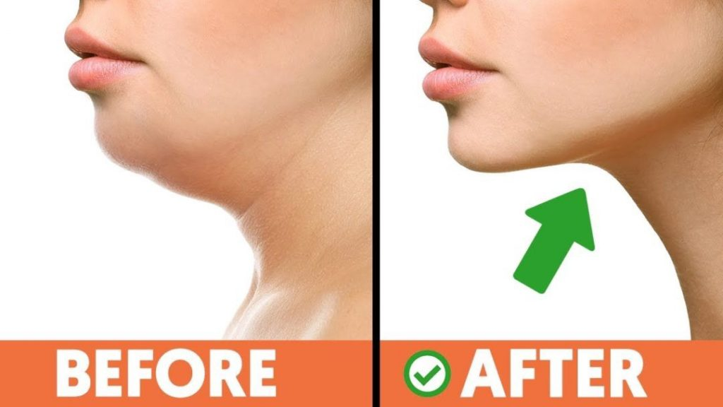 Exercises to Get Rid of a Double Chin. Get Rid of Double Chin Exercises